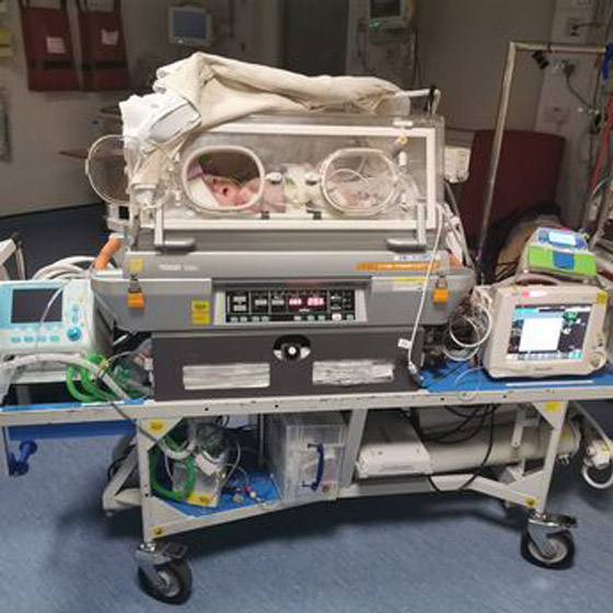 طفلة تخضع لـ 36 عملية جراحية بسبب حالة نادرة صورة رقم 3
