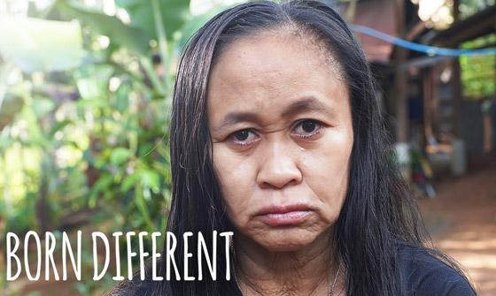 حالة نادرة.. فتاة فلبينية بعمر 16 عاما بوجه امرأة في سن الـ50! صورة رقم 4