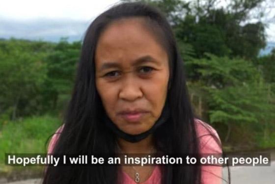 حالة نادرة.. فتاة فلبينية بعمر 16 عاما بوجه امرأة في سن الـ50! صورة رقم 9