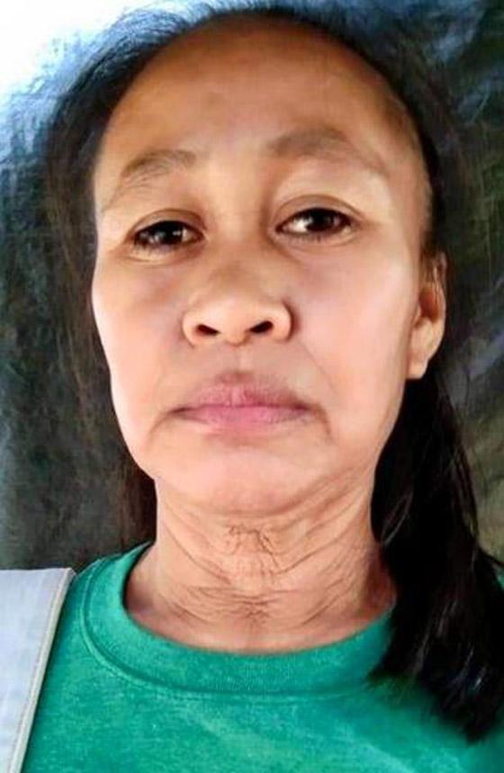 حالة نادرة.. فتاة فلبينية بعمر 16 عاما بوجه امرأة في سن الـ50! صورة رقم 11