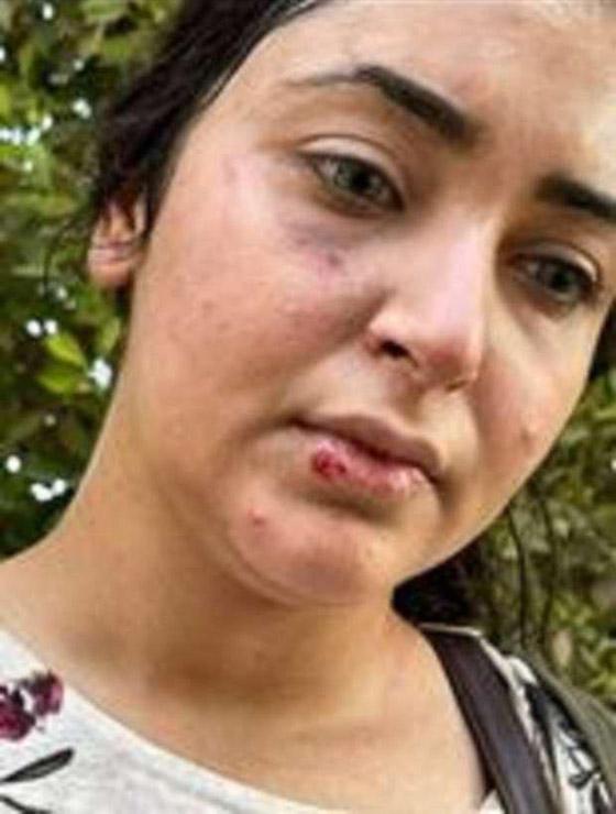 فيديو أثار الغضب الشديد: ضرب وسحل دكتورة صيدلانية مصرية لعدم لبسها الحجاب! صورة رقم 5